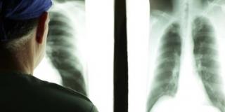 SVJETSKI JE DAN RAKA PLUĆA Od te zloćudne bolesti godišnje umre 3.000 Hrvata