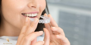 Popust na prozirni aparatić u A2 dental centru
