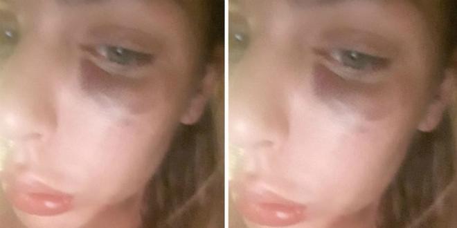 Ava Karabatić šokirala pratitelje na Instagramu: 'Moje krvavo Valentinovo'