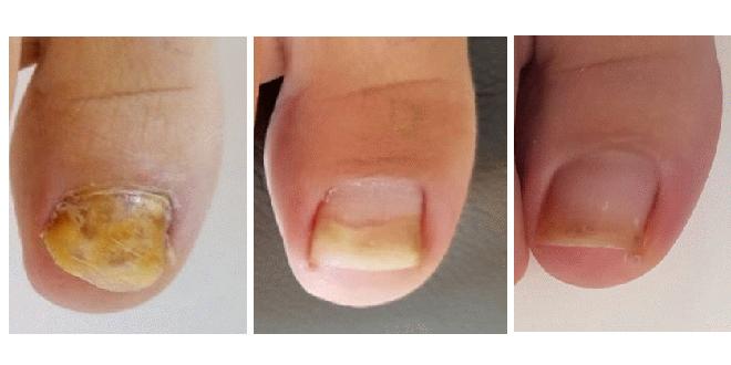 Riješite se gljivica na noktima laserskim tretmanima
