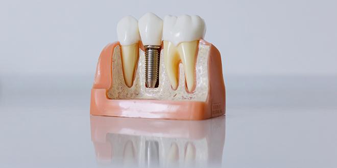 Nadomjestite izgubljen zub po akcijskoj cijeni u Dentechu